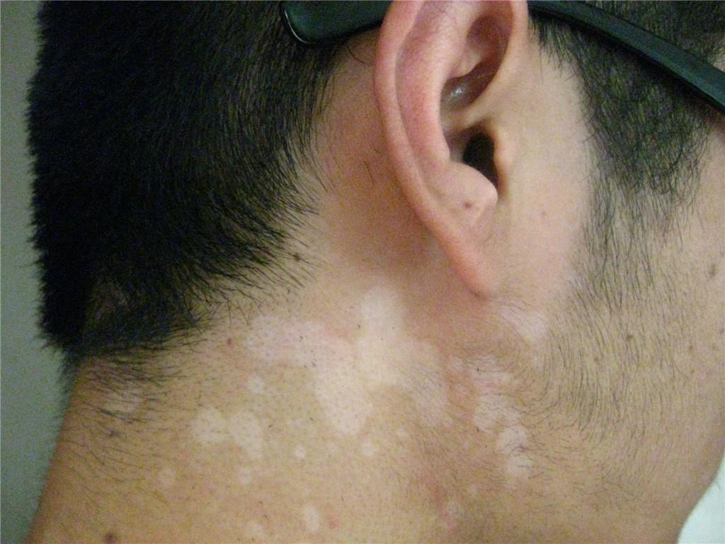 颈部白癜风的症状特点